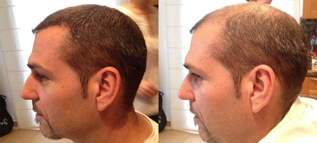Quelles solutions pour soigner la calvitie, en dehors de la greffe de cheveux ?