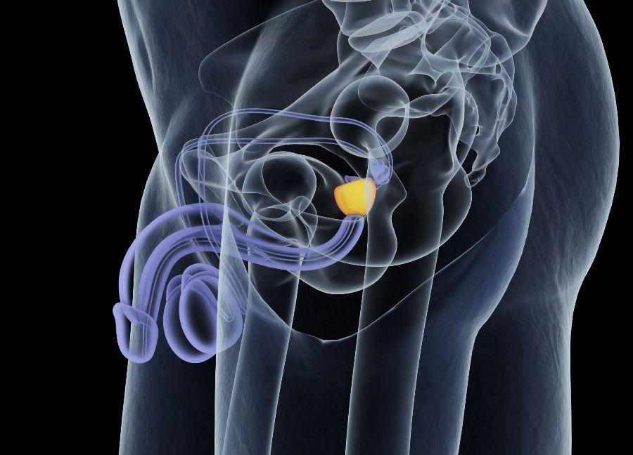Aperçu sur les différents traitements possibles du cancer