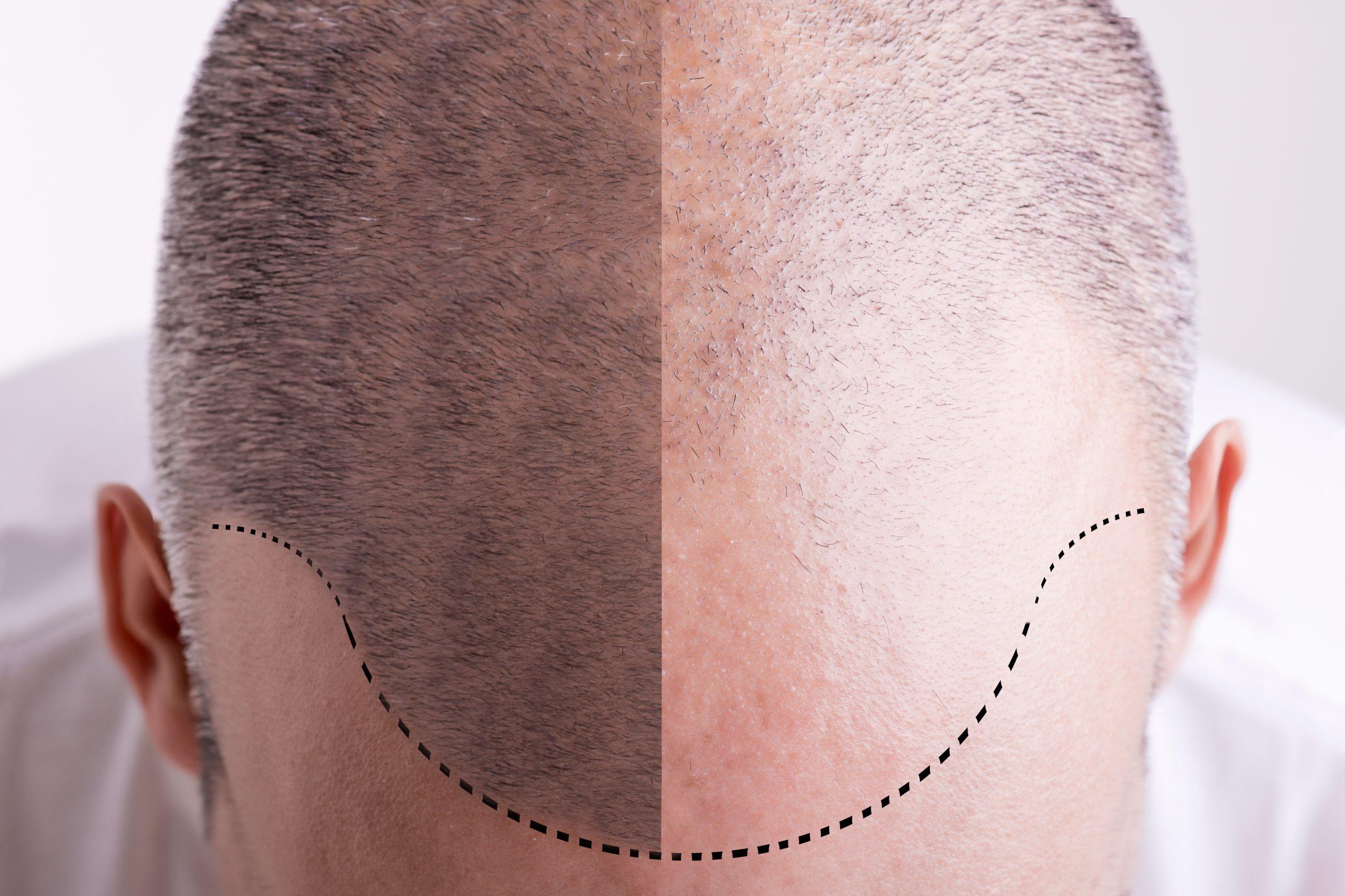 Comment faire son shampoing après une greffe capillaire ?